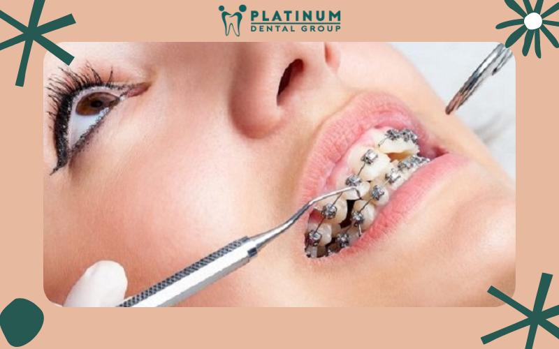 Cắm vít niềng răng có gây đau hay biến chứng gì không?